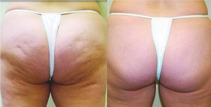 Cellulite behandeln mit Carboxytherapie