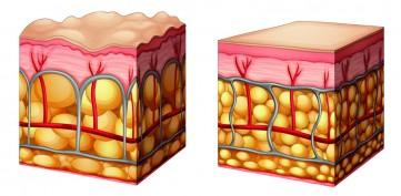 Cellulite behandeln Endermologie